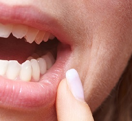 Stomatitis in adults - treatment at home, photo