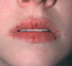 Heilith - causes, photos and treatment