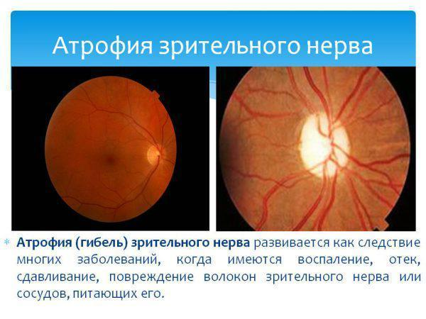 Stagnant optic disc: causes and treatment of the disease