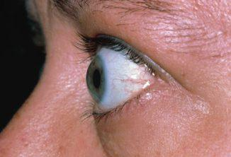 How to cope with endocrine ophthalmopathy?