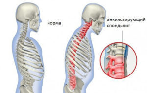Spondylitis: what is it?